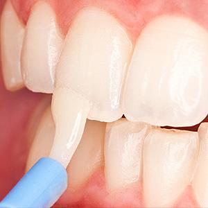 General dentistry 1