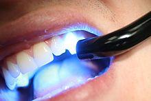 dental composite curing