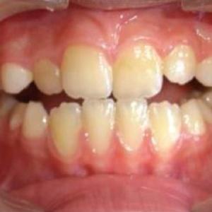 orthodontitics resized