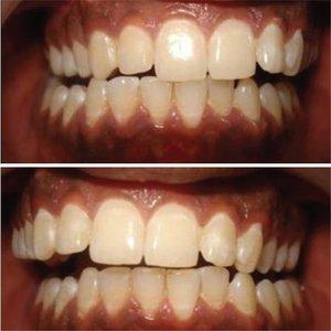 prosthodontics1