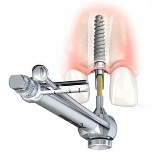 Implants resized